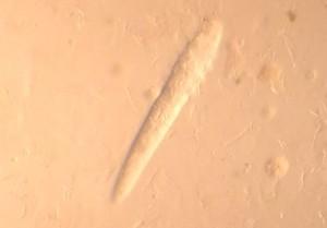 Milben, die Demodikose versuchen (Demotikosemilben)