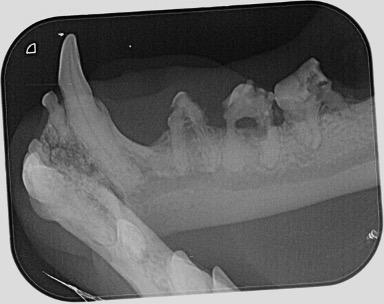 Hochgradige Auflösung der Zahnhälse mit massiven Kronendefekten