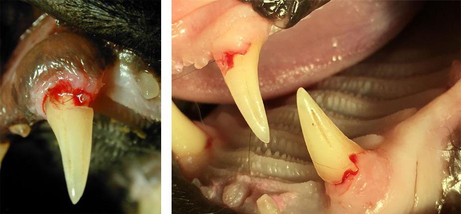 Hochgradige FORL der Zahnkronen nach Entfernung von Zahnstein klinisch sichtbar